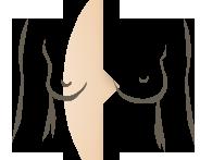 borstvergroot